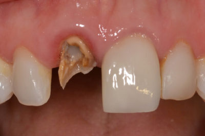 Illustration of A Broken Front Tooth Is Better To Pull Or Crown?