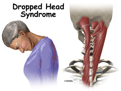 Illustration of The Cause Of The Head Like There Is A Curve?
