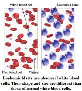 Illustration of How To Cope With Increased Leukocytes In Children Aged 4 Years?