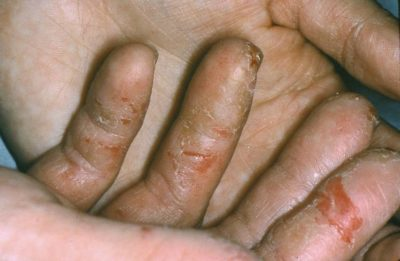 Illustration of How To Deal With Dermatitis On The Fingers?