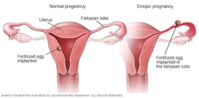 Illustration of Pregnancy Occurs With An Ectopic Pregnancy?
