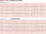 Causes Of Left Chest Pain And Normal ECG Results?