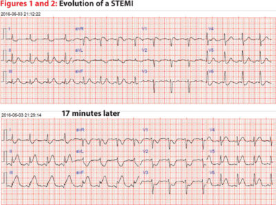 Illustration of Causes Of Left Chest Pain And Normal ECG Results?