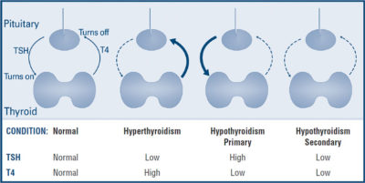 Illustration of Thyroid Hormone Test Results?
