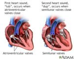 Heart Palpitations When Changing Body Position?
