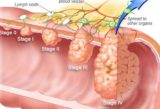 Conditions That Continue To Decline After Bowel Cancer Surgery?
