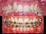 How Long Is The Treatment Of Braces For Deep Bite Teeth?