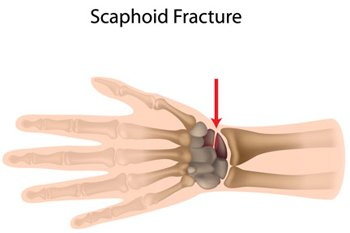 Illustration of Pain In The Hands After Falling?