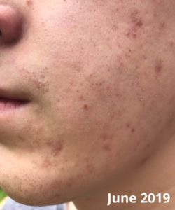 Illustration of Acne Is Multiplying After Using Olive Oil?