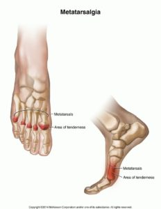 Illustration of Feet Aching And Can Not Walk After Recovering From Stomach Acid Disease?