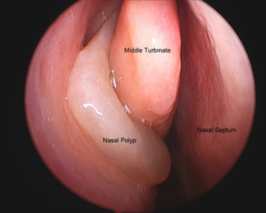 Illustration of The Possibility Of Nasal Polyps Growing Back After Surgery?