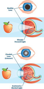 Illustration of Causes Of Visual Impairment After The Installation Of Artificial Lenses?