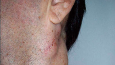 Illustration of Lumps In The Neck Near The Right Ear Are Painful When Tired?