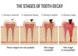 How To Deal With Pain Due To Cavities?