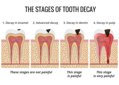 Illustration of How To Deal With Pain Due To Cavities?
