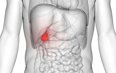 Illustration of The Body Feels Unwell In Sufferers Of Gallstones?