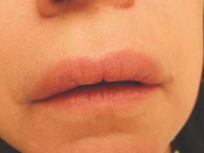 Illustration of The Upper Lip On The Left Feels Cramps, Stiffness And Numbness?