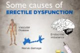 Causes And Ways To Overcome Sexual Dysfunction?