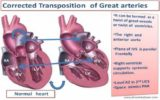 Is My Child's Heart Normal After The Total TGA Correction Operation?
