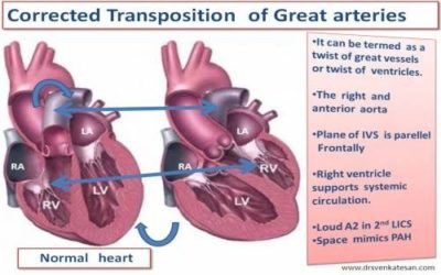 Illustration of Is My Child's Heart Normal After The Total TGA Correction Operation?