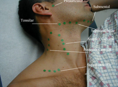 Illustration of Can You Touch Lymph Nodes In The Neck?