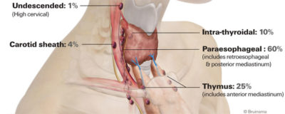 Illustration of The Distance Between The First Operation And Subsequent Surgery In Patients With Atresia Ani?