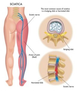 Illustration of How To Treat Lumbar Disc Disorder With Radiculopathy?