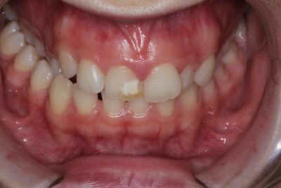 Illustration of Overcoming Cavities In The Front Of The Teeth?