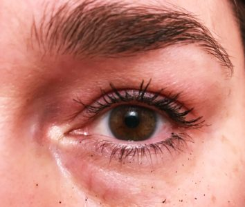 Illustration of Swelling Of The Eyelids And Reddish In Color?