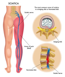 Illustration of The Cause Of Pain In The Leg Is Like Pinching Or Pressure?