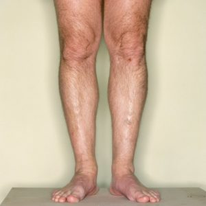 Illustration of Thigh Muscles Often Twitch And Tremble?