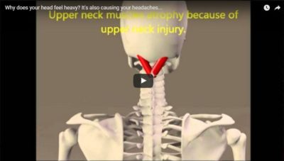 Illustration of Causes Neck Pain And Head Feels Heavy?