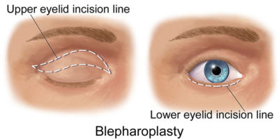Illustration of The Wrinkles / Fine Lines On The Eyelids (bottom) Do Not Disappear?