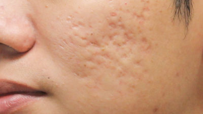 Illustration of Red Acne Scars On The Cheeks?