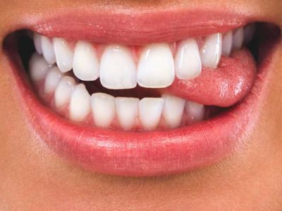 Illustration of The Tongue Has Many White Spots With Teeth That Bleed Easily?