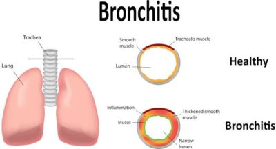 Illustration of What Are The Symptoms Of Dengue Fever And Bronchitis?