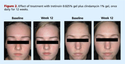 Illustration of Effects Of Mixing Retinoid Cream With Clindamycin?