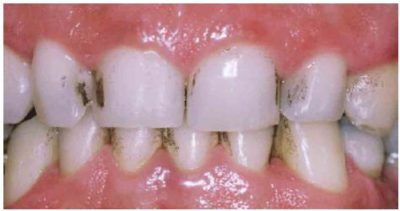 Illustration of Handling Of Porous And Blackish Colored Teeth?
