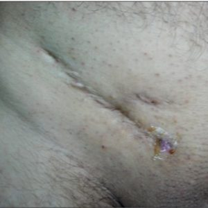 Illustration of How To Find Out The Occurrence Of Infection After Hernia Surgery?