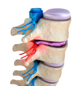 Illustration of The Leg Is Still Weak After The Pinched Nerve Surgery?