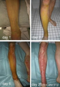 Illustration of Handling Of Skin Exposed To Concentrated HNO3?