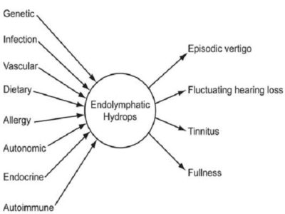 Illustration of The Connection Between Immune System Disorders And Vertigo?