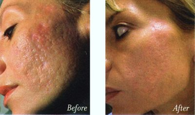 Illustration of The Effect Of Using Phenol Based Products On The Skin?