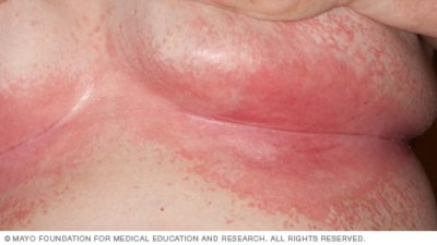 Illustration of Red, Painful Skin Around Under The Breast?