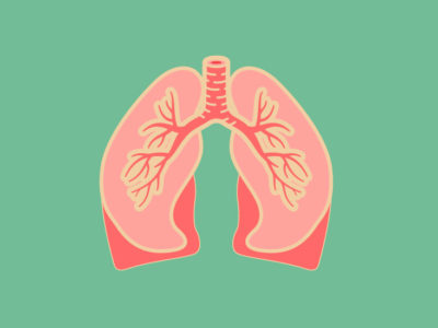 Illustration of The Cough Won't Heal And Is Associated With Watery Lungs?