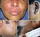 Handling Of Facial Skin Thinning Due To Misuse Of Cosmetics?