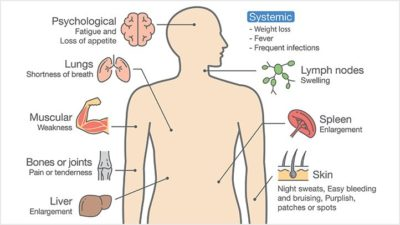 Illustration of Weak Body, Excessive Sweating, And High Leukocytes?