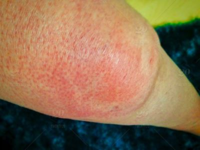 Illustration of The Blisters On The Knee, Feel Itchy And Swollen?
