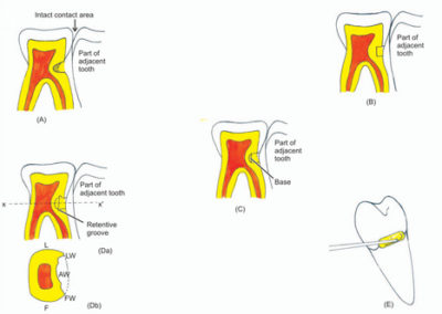 Illustration of Overcoming Untidy Tooth Structure?