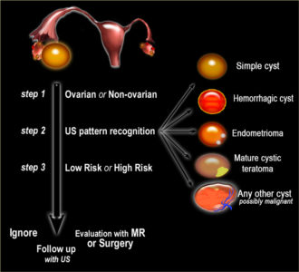 Illustration of Ovarian Cyst Examination Differs Between The First And Second Results?
